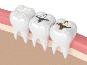 セラミックインレーと銀歯の違い