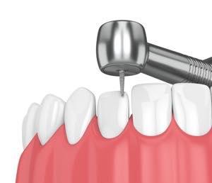セラミック矯正ではなぜ歯を削るの?抜歯も必要?