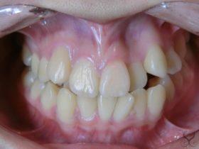八重歯で乱杭歯状態の歯並びはセラミック矯正で治せるの?