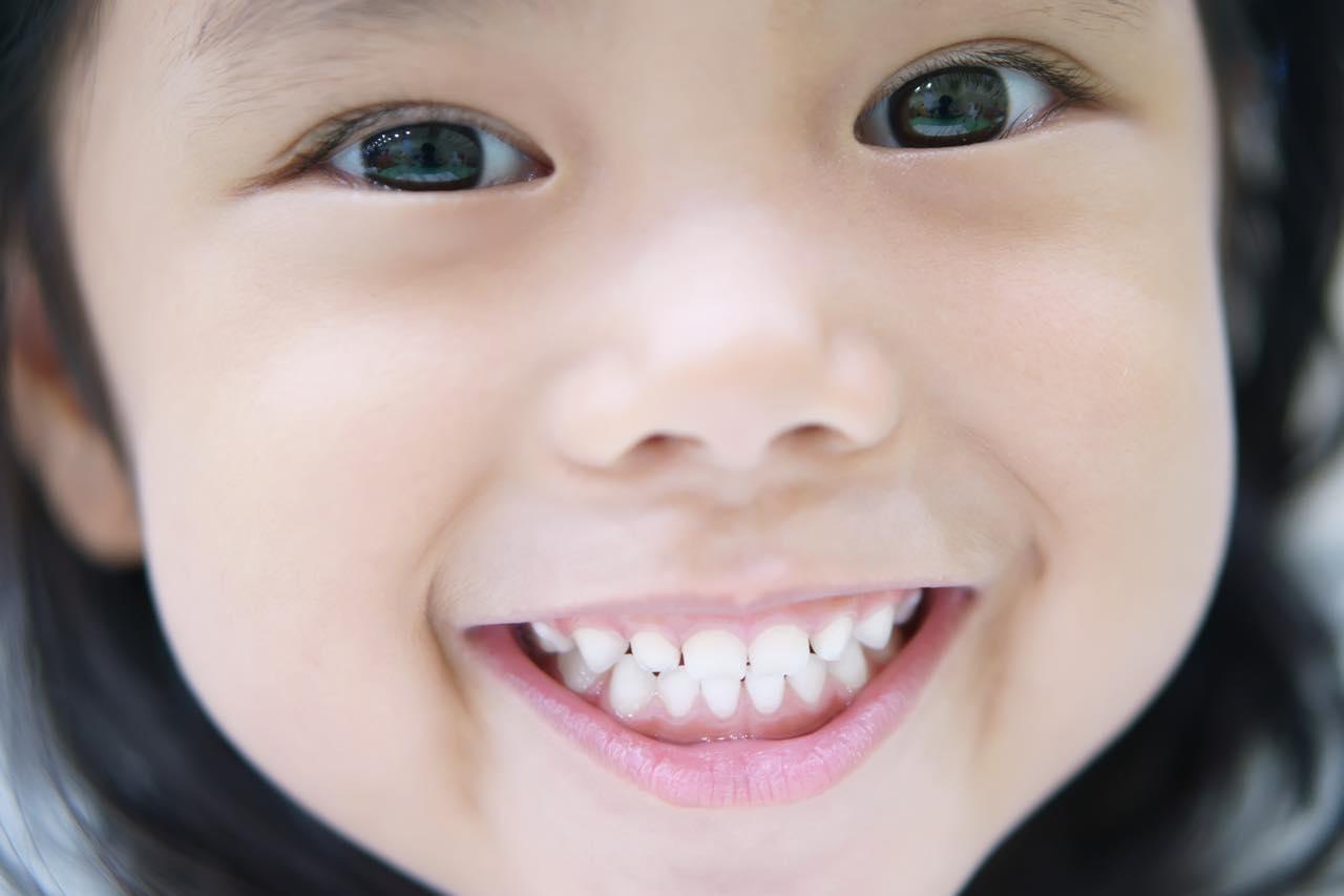 歯 列 矯正 子供