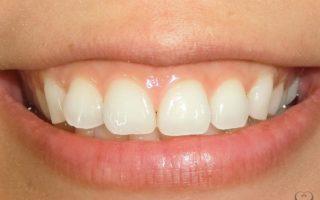 歯列矯正でガミースマイルは改善できるの?