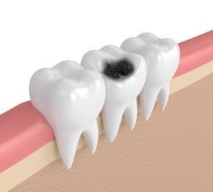 虫歯治療後の奥歯の再建方法