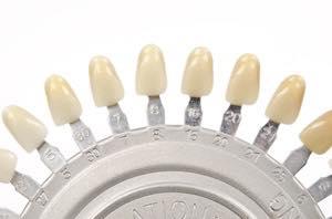 歯の色合わせ(シェードテイキング)