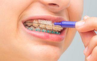 ワイヤー矯正中の歯のケアと注意点