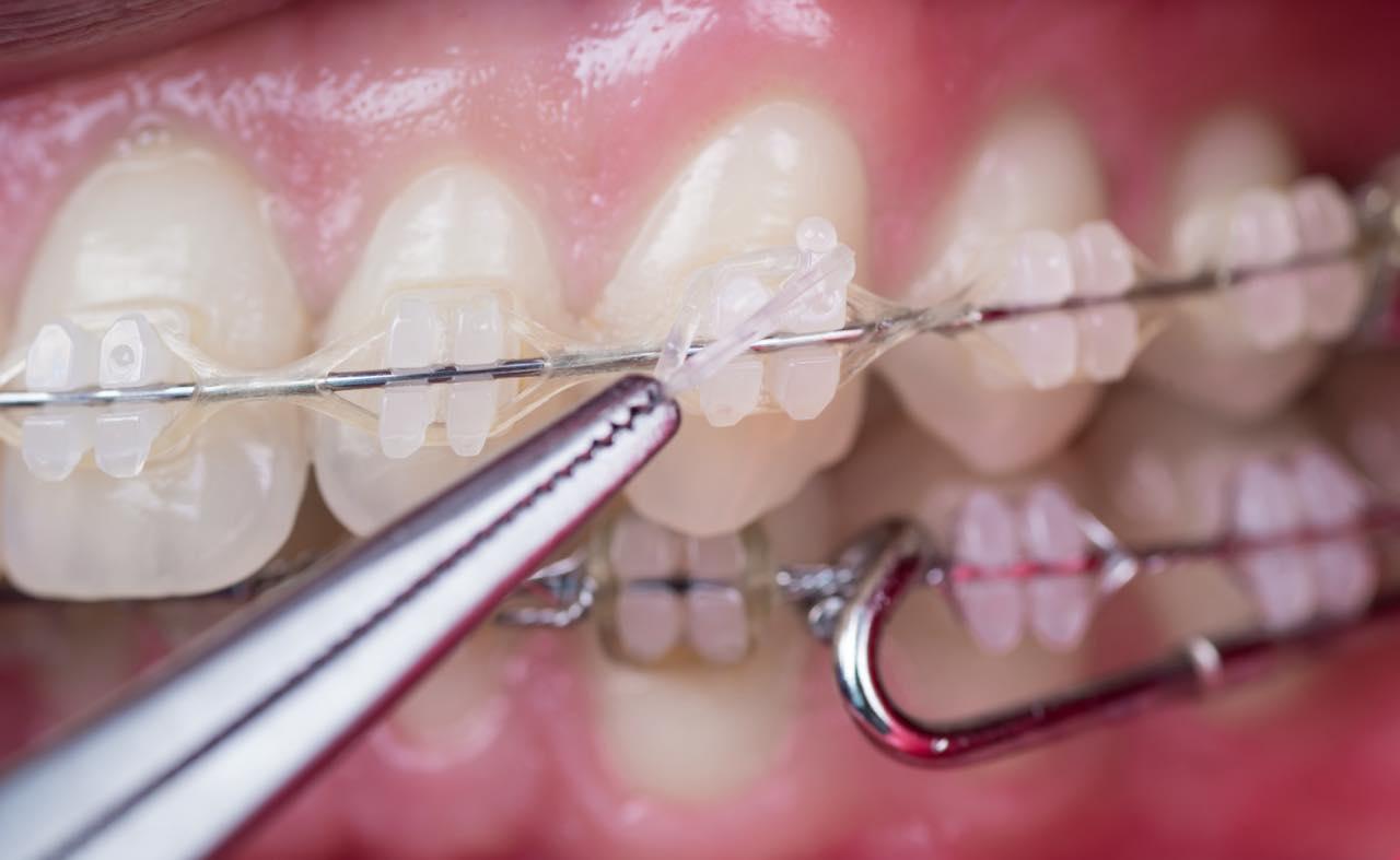 歯列矯正中の痛み対策