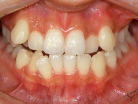 ガタガタした叢生(乱杭歯)の歯並びは歯科矯正で治せるの?