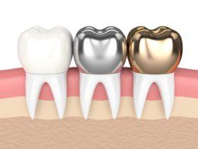 保険と保険外の差し歯の値段と種類