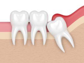歯並び悪化の原因と親知らずの関係について