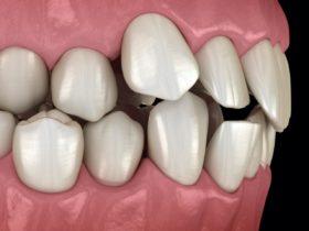 歯並びが悪い原因と種類別の影響と矯正法